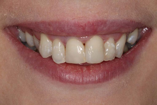 Crooked Teeth Before & After