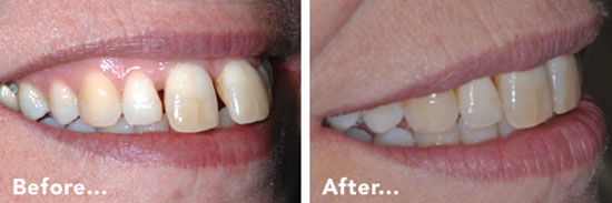 Missing Teeth Before & After