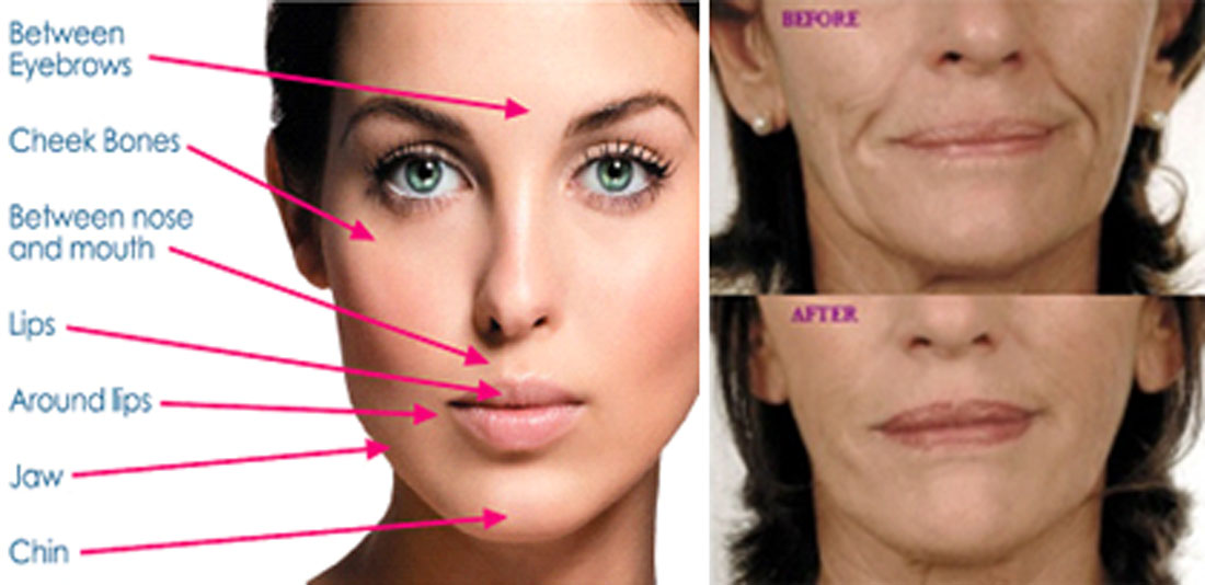 Dermal Fillers | The Staines Centre of Dental Excellence
