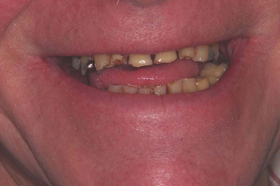 Worn Teeth